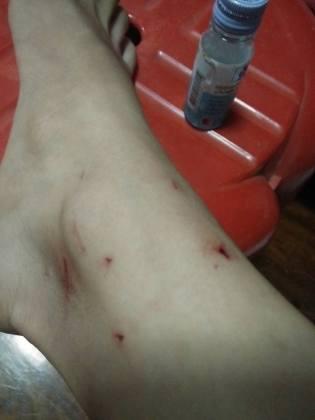 wound1