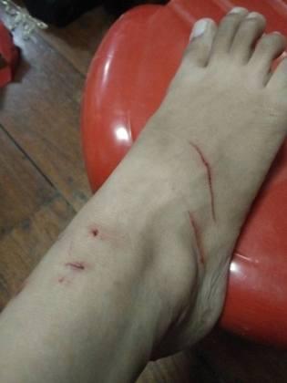 wound2